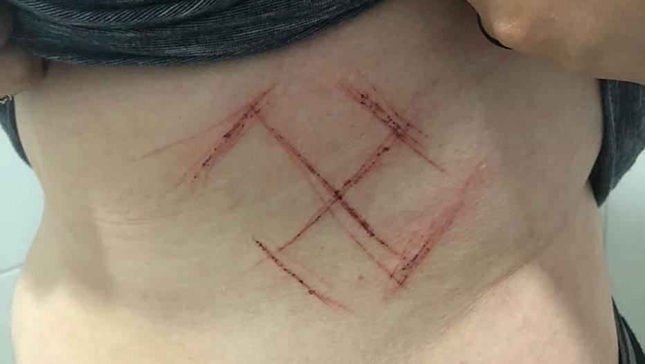 Jovem de 19 anos tem suástica marcada na pele a canivete, em Porto Alegre (Foto: Reprodução)