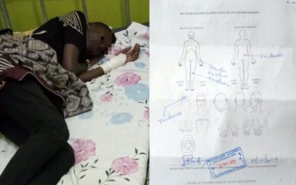 Vítima de agressão em hospital da Uganda; ao lado, avaliação médica das lesões após agressão (Foto: Reprodução)