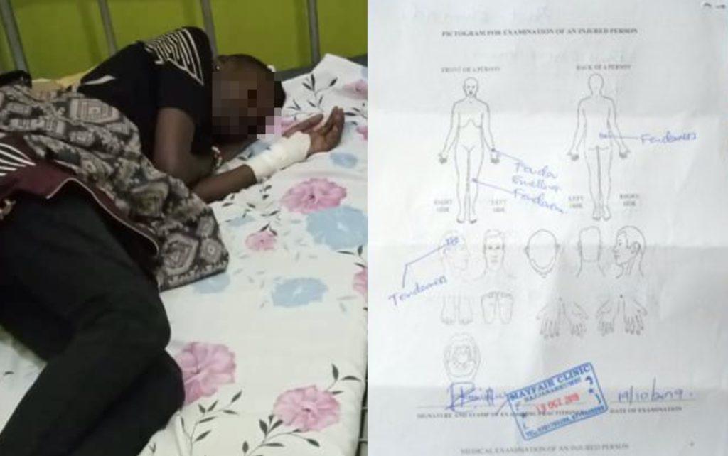 Na Uganda, médico espanca paciente ao descobrir que ela é lésbica